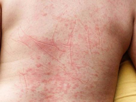 Sintomas e tratamento da Dengue.