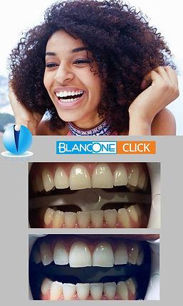 Blanchiment dents CLICK.jpg