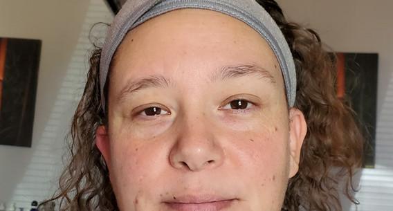 Facial Before