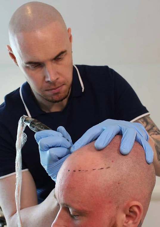 Scalp Micropigmentation Loughborough