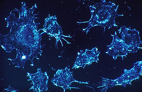 cancer-cells-541954_1920.jpg