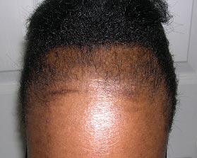 traction_alopecia
