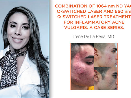 1064 nm Nd:YAG Q-Switched Laser & 660 nm Q-Switched LASER Treatment for Inflammatory Acne Vulgaris