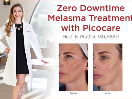 Zero Downtime Melasma Treatment with Picocare