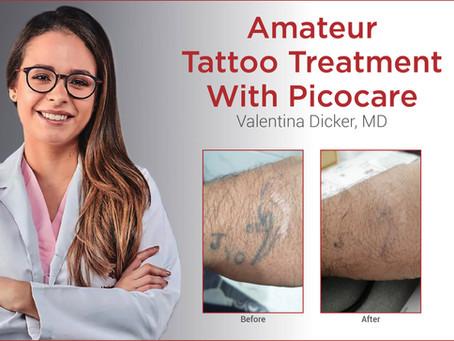 Amateur Tattoo Treatment With Picocare