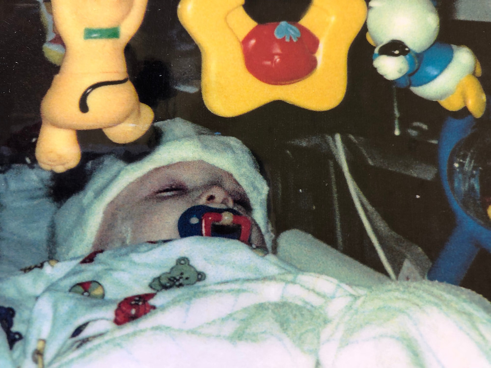 Baby Sean right after brain surgery