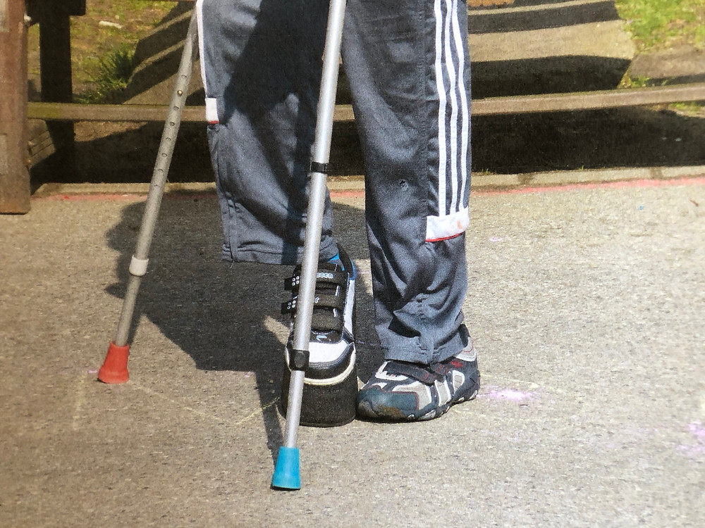 Twisted, disabled legs with two canes