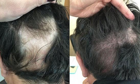 SMP-for-Alopecia.jpg