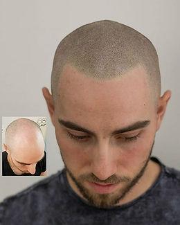 scalp-micropigmentation-hairline.jpg