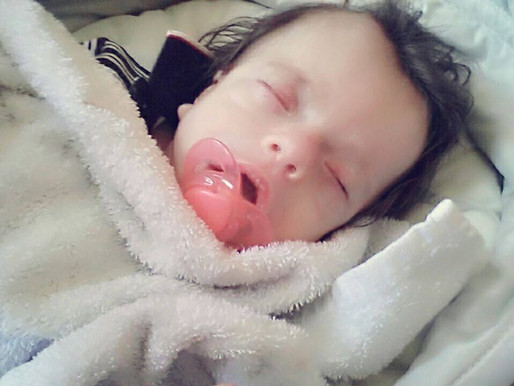 NEVER NEVER GIVE UP!!!!!!!!! Dante's Journey with Schinzel-Giedion syndrome