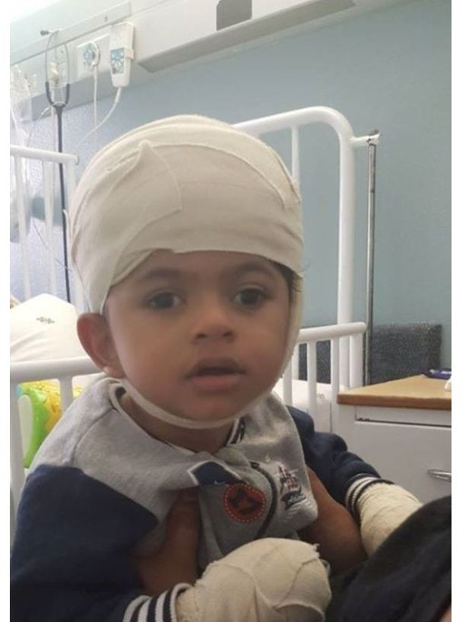 The fighting spirit in Joshua is totaly remarkable #Hydrocephalus