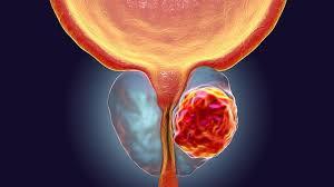 Рак на простатата- честота и рискови фактори