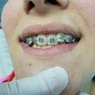 Ortodonzia Dentisti Albania