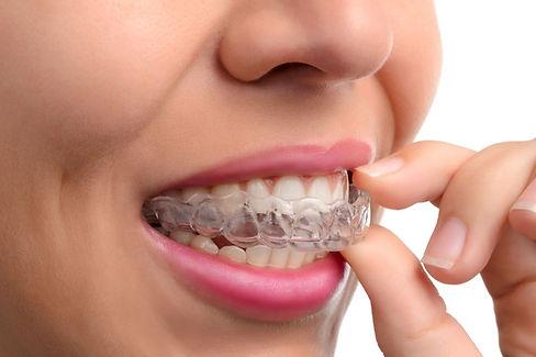 Dentisti Albania. L'ortodonzia invisibile, Apparecchio ortodontico