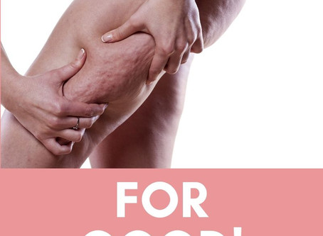 How to Eliminate Cellulite FOR GOOD.