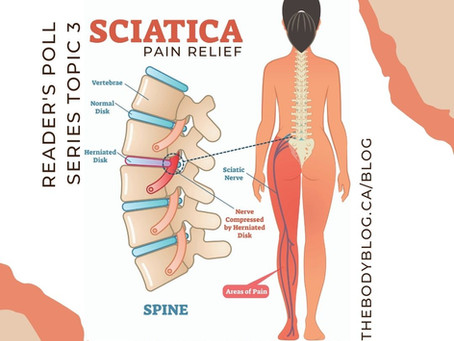 Reader's Poll Series Topic 3: Sciatica Pain Relief