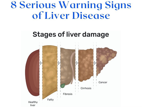 8 Serious  Warning Signs of Liver Disease
