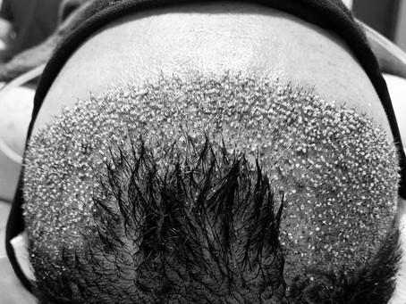 Cuidados pós-transplante capilar