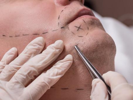 De onde são retirados os fios para o transplante de barba?