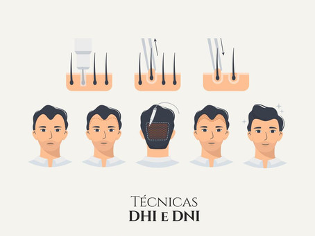 Técnicas DHI e DNI: o que são?
