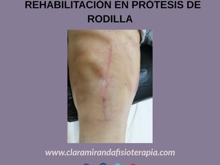 ¿Cómo puede ayudarme la fisioterapia tras cirugía de prótesis de rodilla?