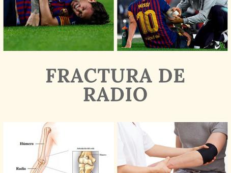 ¿Cómo se recupera una fractura del radio?