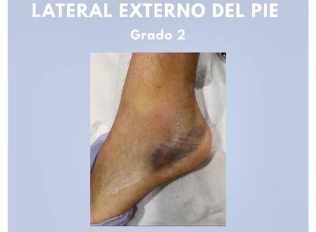 Tratamiento de fisioterapia en esguince de tobillo