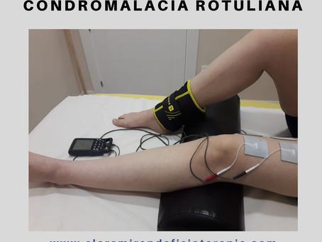 Fisioterapia para el tratamiento de la condromalacia rotuliana