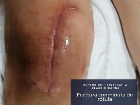 Fisioterapia tras fractura de rótula de rodilla