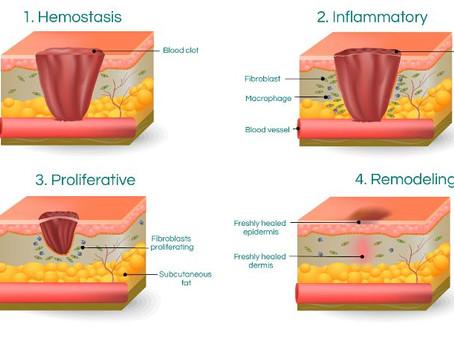 Fisioterapia para edemas y cicatrices