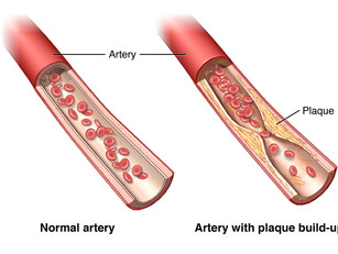 Natural and scientific ways to help your arteries