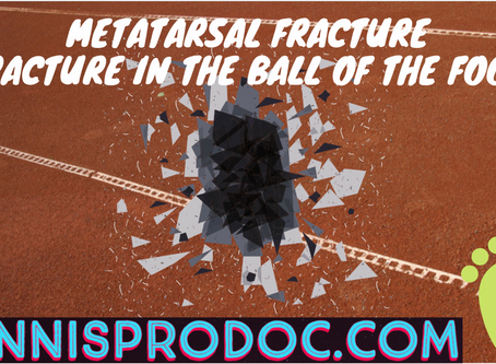 Metatarsal Fracture (Fracture in the ball of the foot)
