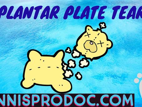 Plantar Plate Tear