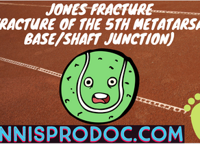 Jones Fracture (Fracture of the 5th metatarsal base/shaft junction)