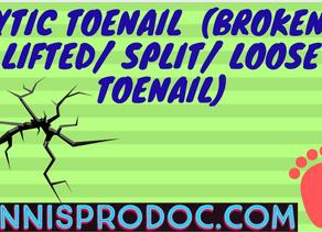 Lytic Toenail  (Broken/ Lifted/ Split/ Loose Toenail)