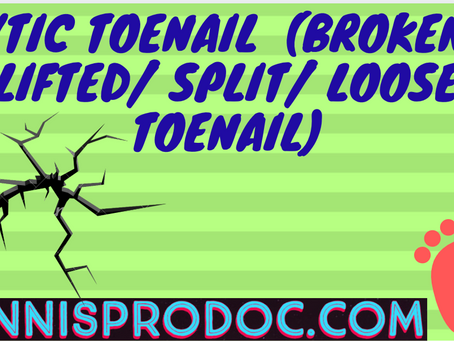 Lytic Toenail  (Broken/ Lifted/ Split/ Loose Toenail)