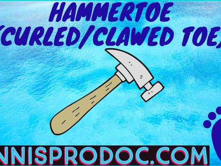 Hammertoe (Curled/Clawed Toe)