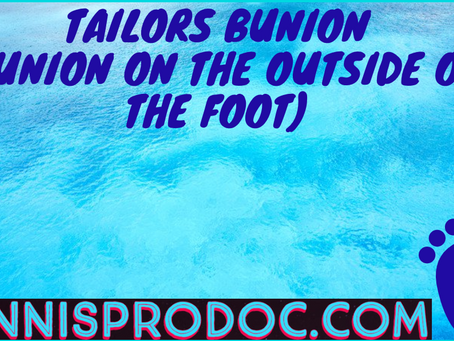Tailors Bunion (Bunion on the outside of the foot)