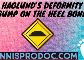 Haglund's Deformity (bump on the heel bone)