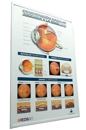 Relief Poster11_medizinisches Plakat_AUGE