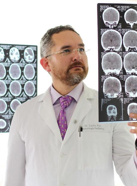 Neurocirujanopediatraenqueretaro