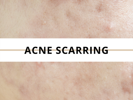 Treating acne scarring and fine lines with Collagen Induction Therapy (CIT or Skin Needling).