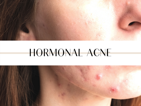 How do I know if I have hormonal acne?
