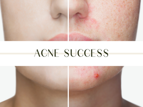 How my clients heal from acne, successfully.