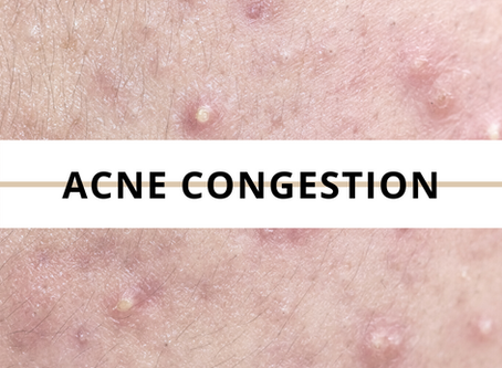 External factors that could be aggravating your acne