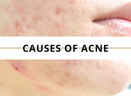 What causes acne? Let's talk about it.