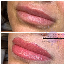 ✨ lip blush before and after ✨ Voted by