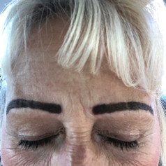 client selfie- the next day after her removal.