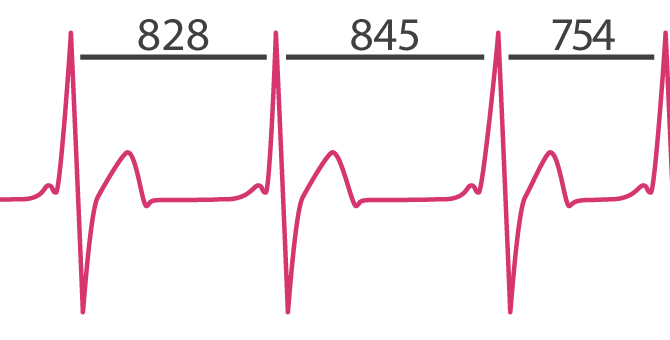 WHAT IS HEART RATE VARIABILITY (HRV) AND WHY DOES IT MATTER FOR HEALTH?