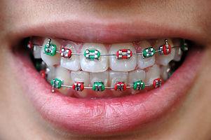 Ортодонтия, Исправление прикуса